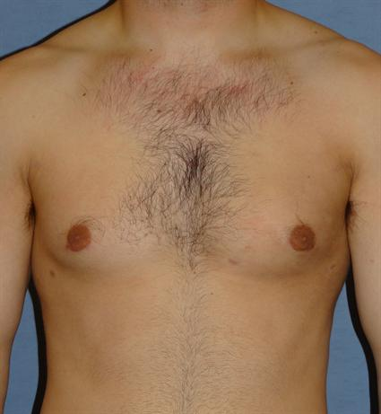 Gynecomastia for Men Before & After Patient #1424