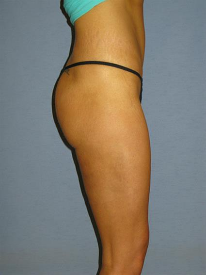 Liposuction Before & After Patient #1025