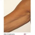 Venus Legacy Before & After Patient #1829