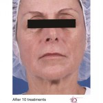Venus Legacy Before & After Patient #1826