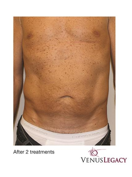 Venus Legacy Before & After Patient #1817