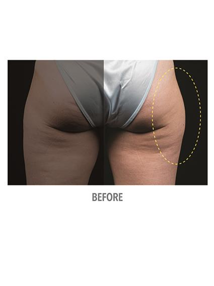 CoolSculpting Before & After Patient #1022