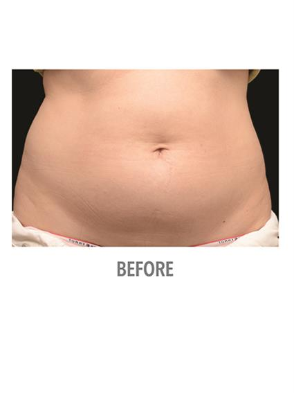 CoolSculpting Before & After Patient #1019