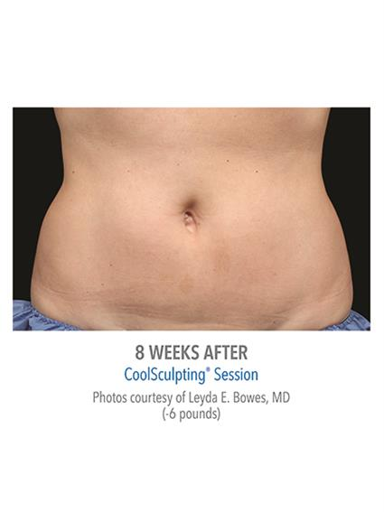 CoolSculpting Before & After Patient #1016