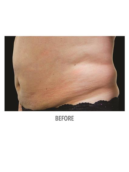 CoolSculpting Before & After Patient #1012