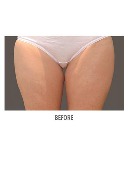 CoolSculpting Before & After Patient #1009