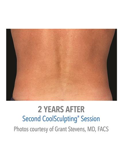 CoolSculpting Before & After Patient #1006