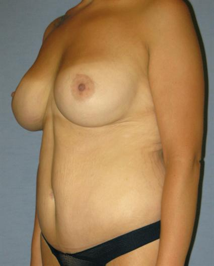 Body Contouring Before & After Patient #973