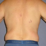 Liposuction Before & After Patient #1053