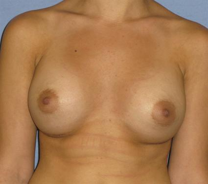 Breast Augmentation Before & After Patient #963