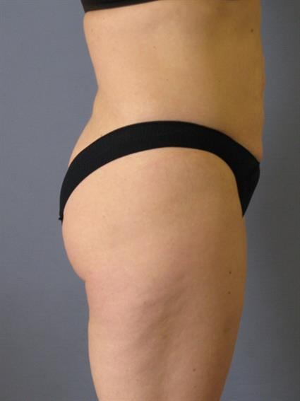 Liposuction Before & After Patient #1046