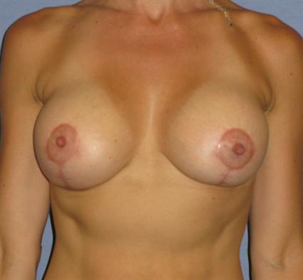 Breast Lift Before & After Patient #1411