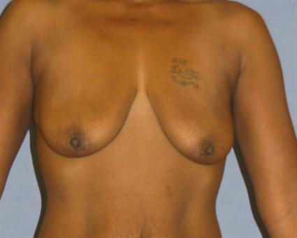 Breast Lift Before & After Patient #1406
