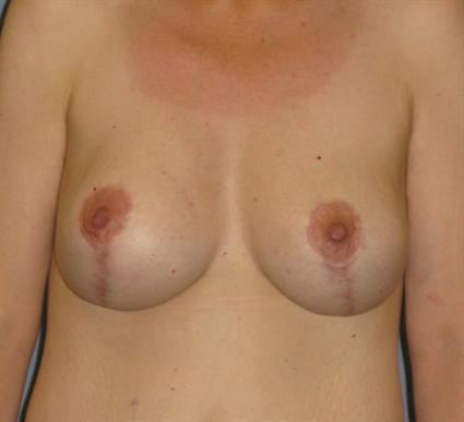 Breast Lift Before & After Patient #1401