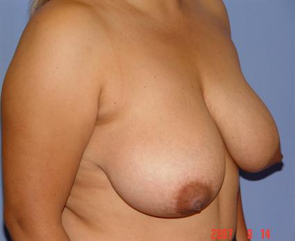 Breast Lift Before & After Patient #1396