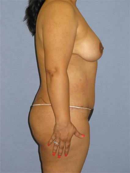 Body Contouring Before & After Patient #968