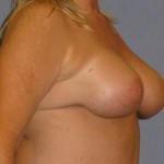 Breast Lift Before & After Patient #1391