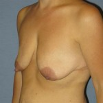 Breast Lift Before & After Patient #1380