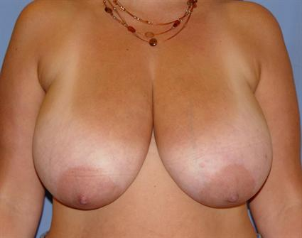 Breast Reduction Before & After Patient #1417