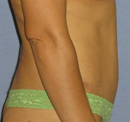 Tummy Tuck Before & After Patient #1255