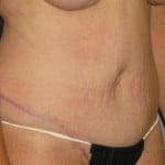 Tummy Tuck Before & After Patient #1250