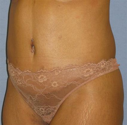 Tummy Tuck Before & After Patient #1241