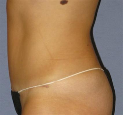 Tummy Tuck Before & After Patient #1094