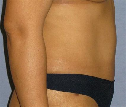 Tummy Tuck Before & After Patient #1231