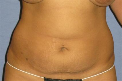 Tummy Tuck Before & After Patient #1226