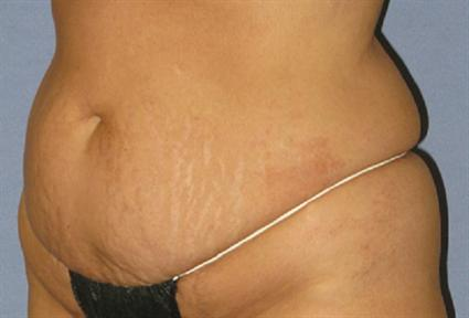 Tummy Tuck Before & After Patient #1200