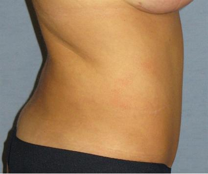 Tummy Tuck Before & After Patient #1177