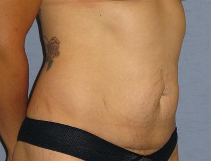 Tummy Tuck Before & After Patient #1170