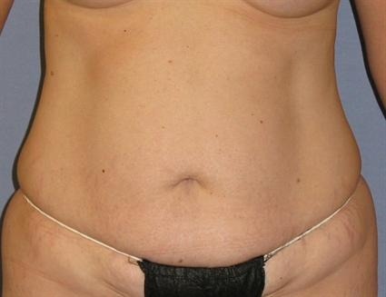 Tummy Tuck Before & After Patient #1158