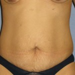 Tummy Tuck Before & After Patient #1151