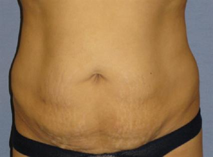 Tummy Tuck Before & After Patient #1146