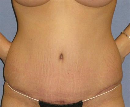 Tummy Tuck Before & After Patient #1087