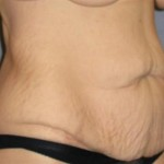 Tummy Tuck Before & After Patient #1139