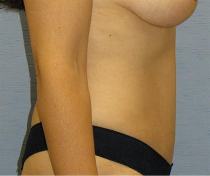 Tummy Tuck Before & After Patient #1125