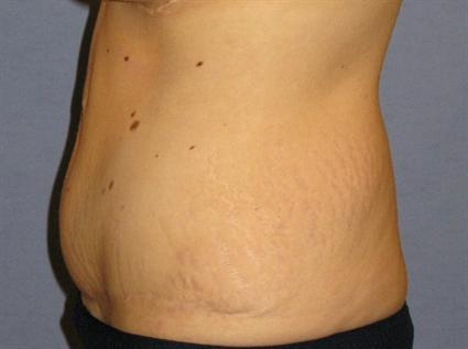 Tummy Tuck Before & After Patient #1120