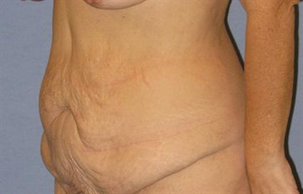 Tummy Tuck Before & After Patient #1113