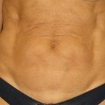 Tummy Tuck Before & After Patient #1106