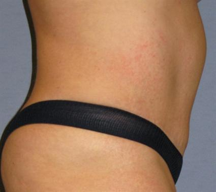 Tummy Tuck Before & After Patient #1099