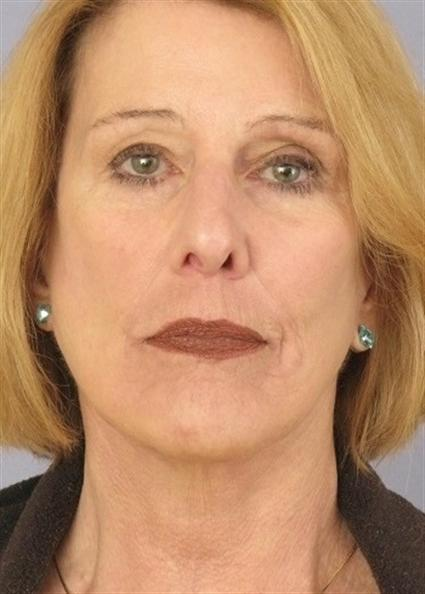 Facelift Before & After Patient #1679