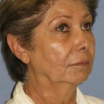 Facelift Before & After Patient #1664