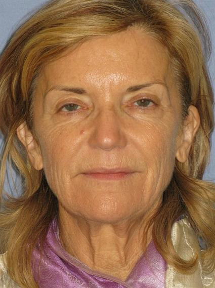 Facelift Before & After Patient #1432