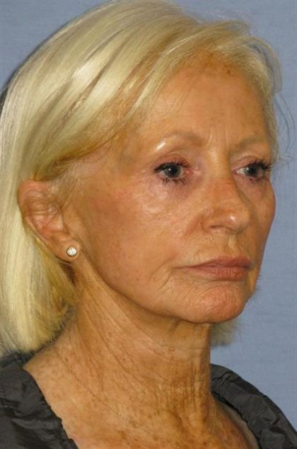 Facelift Before & After Patient #1627