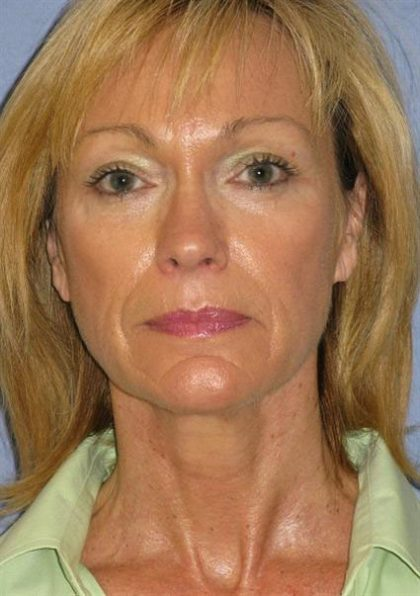Facelift Before & After Patient #1612