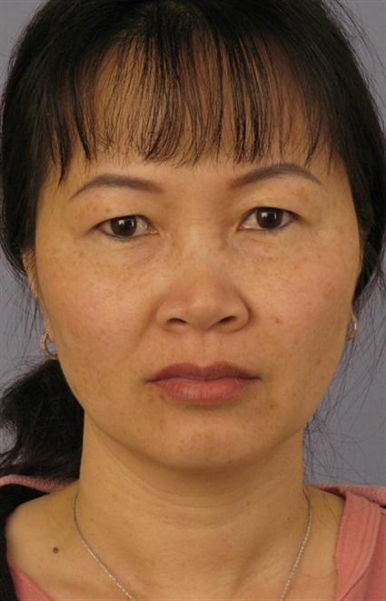 Eyelid Surgery Before & After Patient #1542