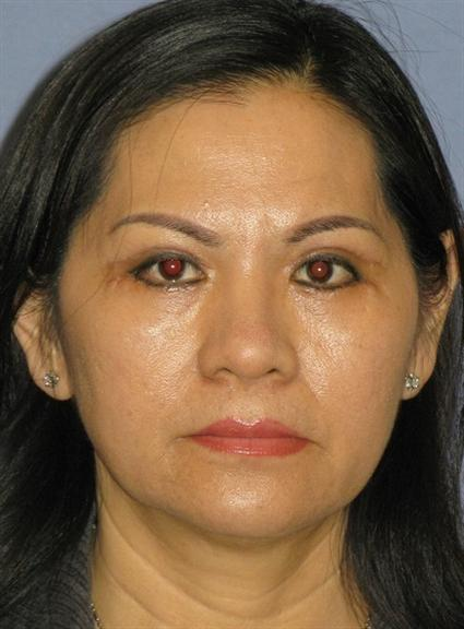 Eyelid Surgery Before & After Patient #1536