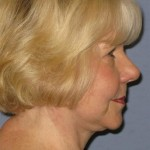 Facelift Before & After Patient #1605